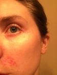 Periocular Dermatitis
